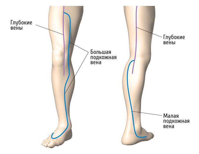 варикоз большой подкожной вены ноги