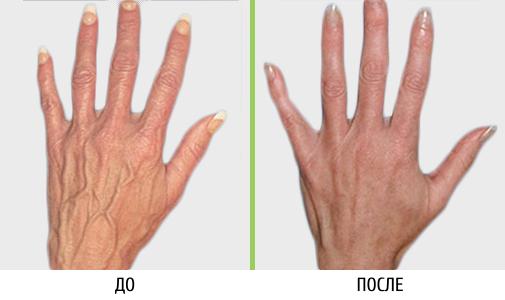 Лечение вен на руках | Клиника современной флебологии