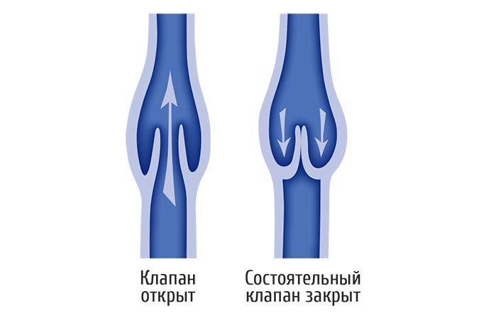 клапаны вен нижних конечностей
